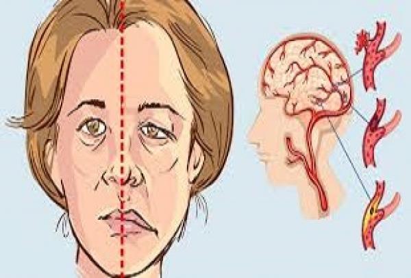 Los primeros síntomas de un derrame cerebral
