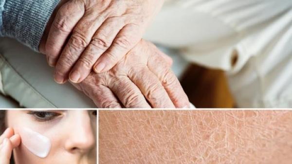 Beneficios de una piel bien hidratada.